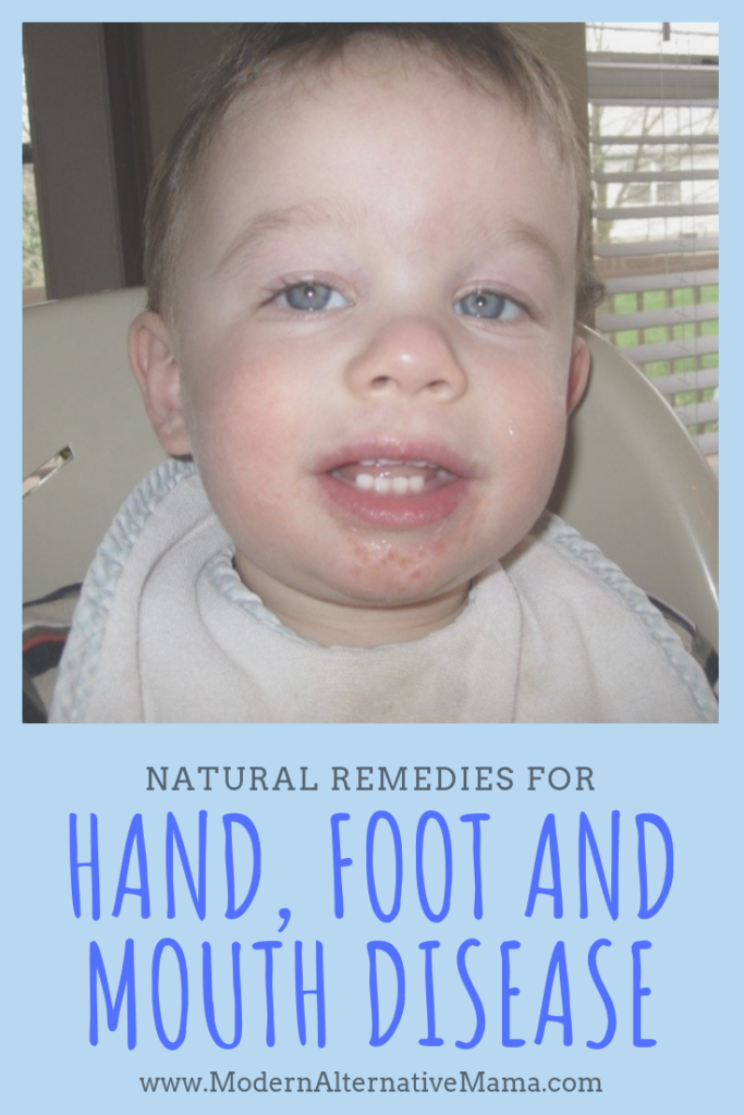 hand foot and mouth