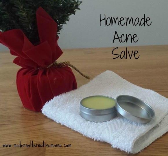 acne salve2 edit